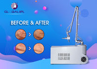 10.6 Microns Micro CO2 Fractional Laser Machine For Eye Protection