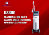 peau partielle de laser de CO2 machine/50W de beauté du laser 10600nm reblanchissant